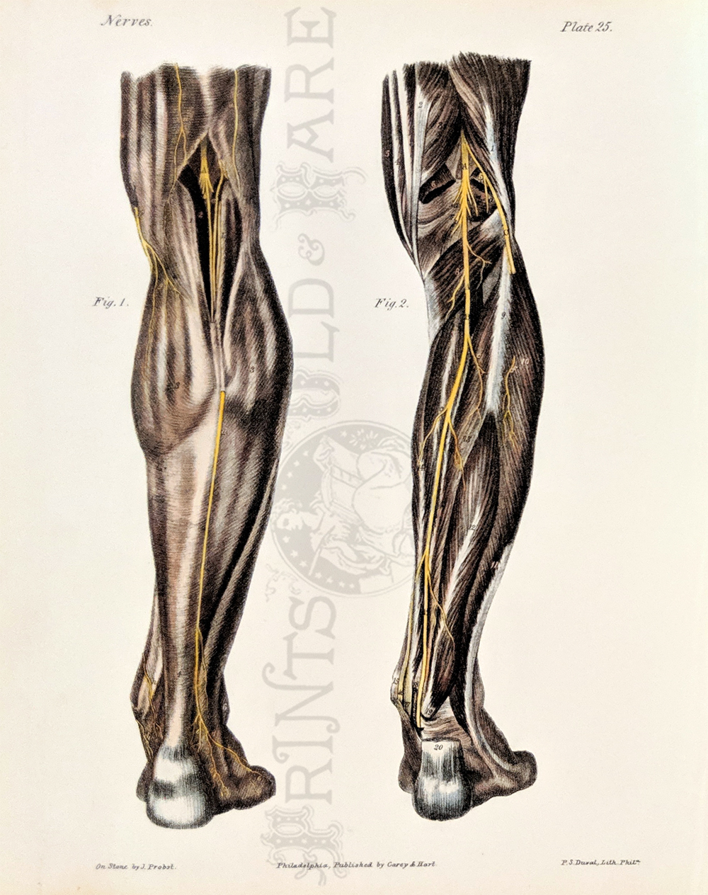 Prints Old & Rare - Medical, Surgical and Anatomy - Antique